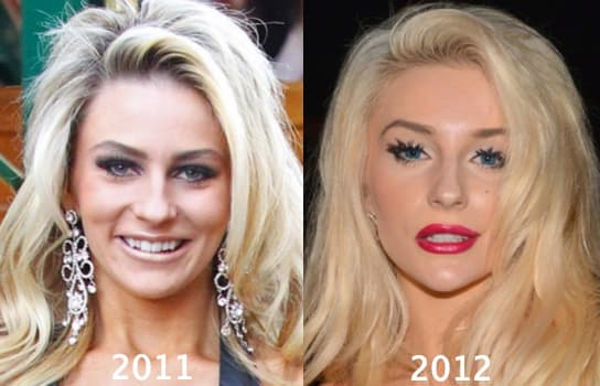 Madonna Plastic Surgery Before And After photo - 1