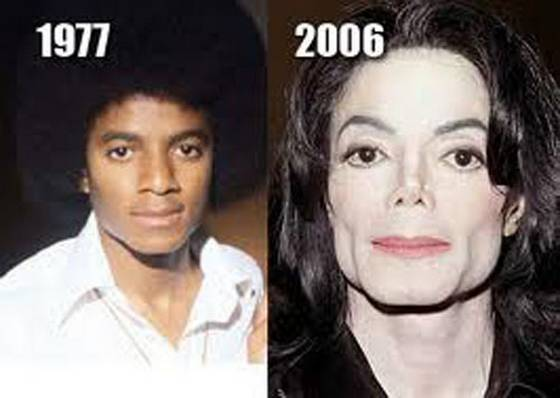 Michael Jackson Before And After Plastic Surgery photo - 1
