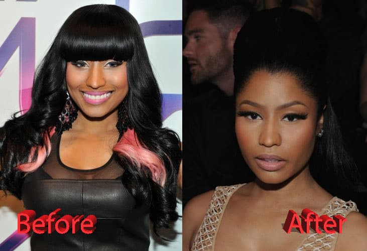 Niki Minaj Before Plastic Surgery photo - 1