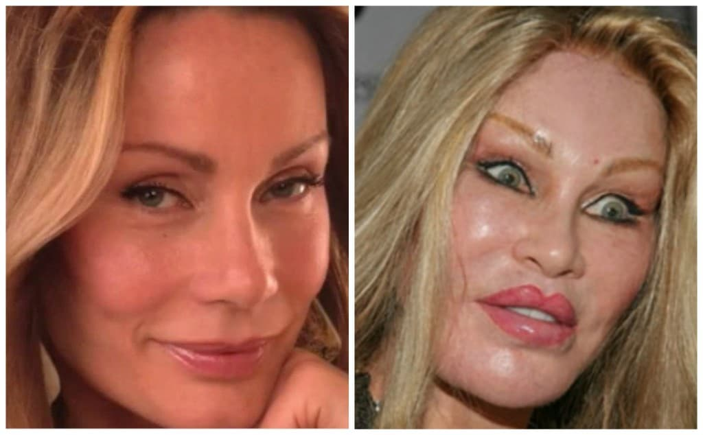 Plastic Surgery Catwoman Before And After photo - 1