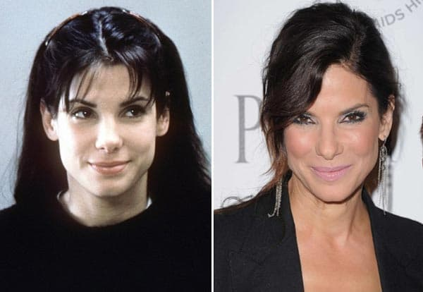 Sandra Bullock Before And After Plastic Surgery photo - 1