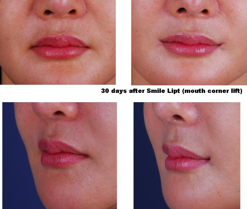 Smile Plastic Surgery Before And After photo - 1