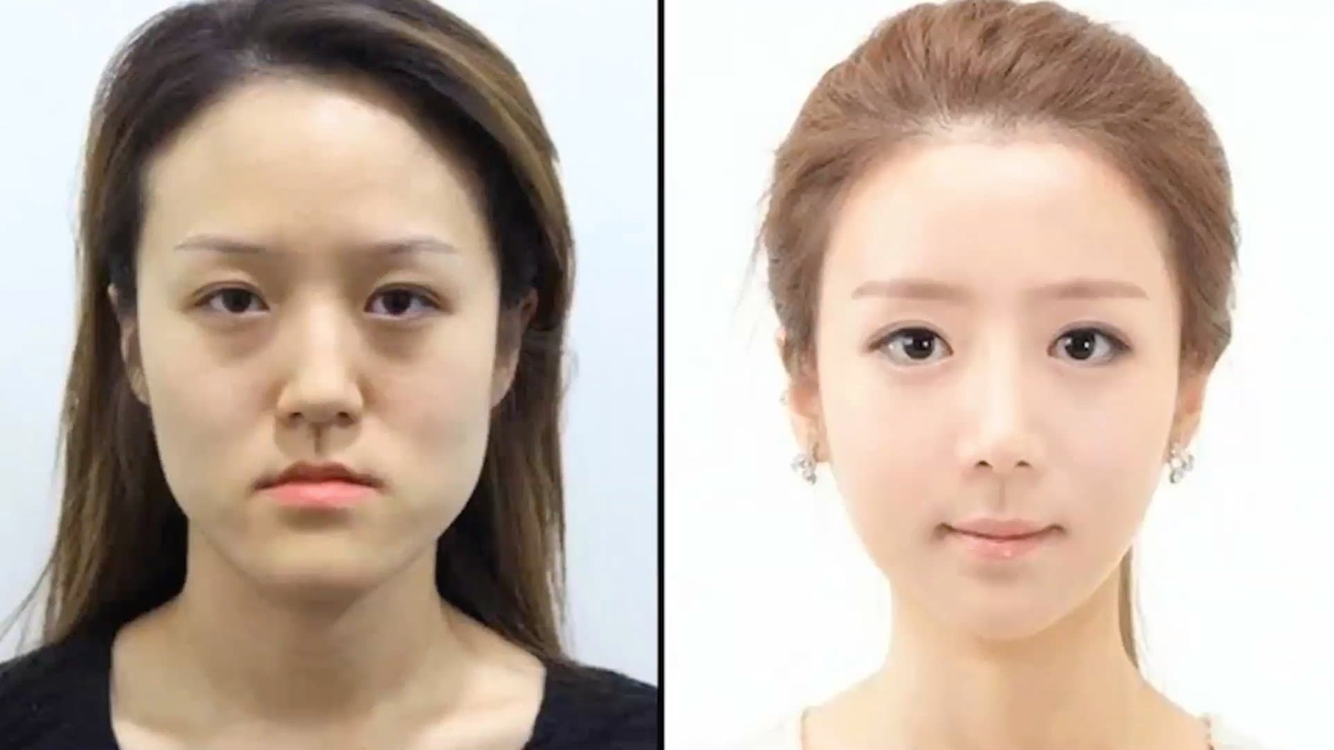 South Korea Plastic Surgery Before And After photo - 1