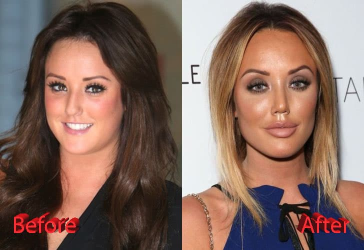 Vicky Pattison Plastic Surgery Before And After photo - 1