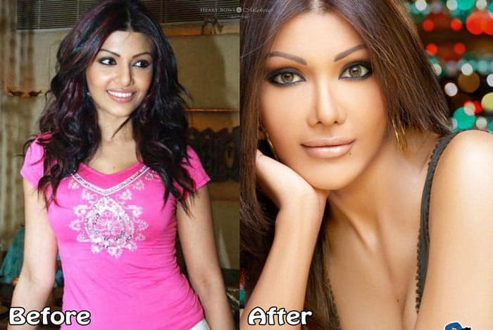 Worst Plastic Surgery Before And After Bollywood photo - 1